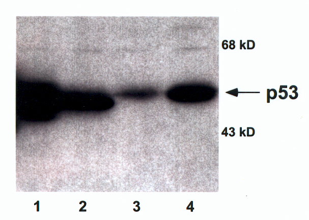 Each lane contains 50µg of total cellular protein separated by 10% SDS-PAGE. (1) Murine mutant p53; (2) murine wild-type p53; (3) wild-type p53 protein from human colorectal carcinoma cells (RKO); (4) elevated levels of human p53 protein following treatment of RKO cells with adriamycin (0.2 µm).