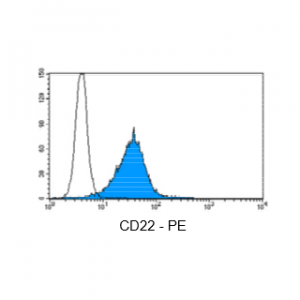 Figure 3: Immunostaining with Nordic-MUbio CD22-PE conjugate of undifferentiated leukemia cells of B-ALL type.