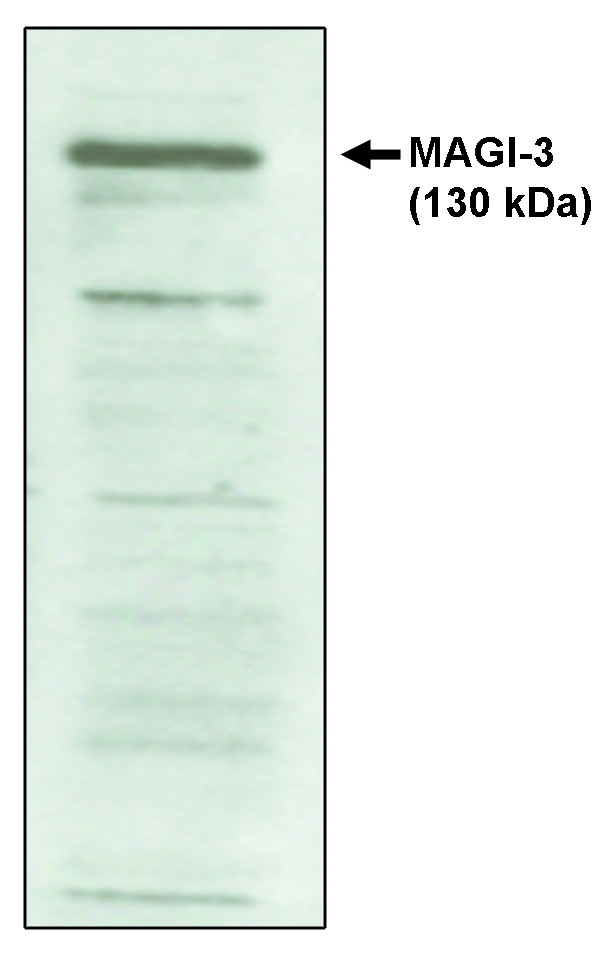 """Western blot analysis  using MAGI-3, PDZ 4-5 antibody on cell lysates transfected with full-length human MAGI-3 protein."""