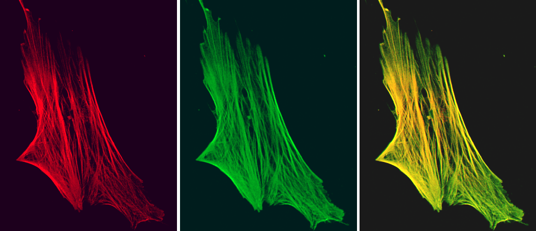 Figure 7. Indirect immunofluorescence staining of a cultured human fibroblast, showing colocalization of smoothelin (red fluorescence; as detected by MUB1700P, R4A) and actin (green fluorescence).