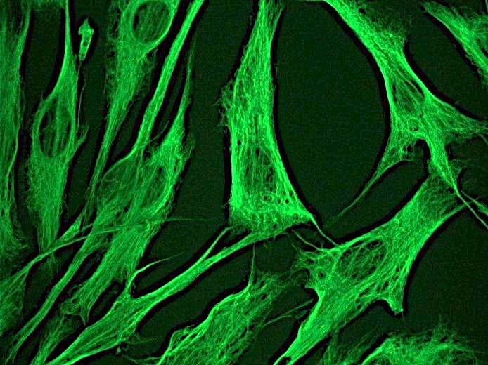 Figure 1. Indirect immunofluorescence staining of normal human dermal fibroblasts in tissue culture with MUB1903P (diluted 1:250), showing the specific cytoskeletal pattern of vimentin intermediate filaments.