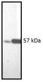 Figure 10. Western blotting result showing the specific reactivity of MUB1904P with the 57kDa protein band of vimentin in both the mouse (3T3 mouse fibroblasts; left lane) and human (normal human dermal fibroblasts; right lane) cell extracts.