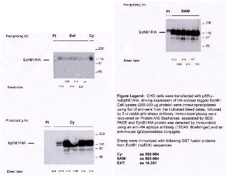 """""""Legend: CHO cells were trasfected with pSR-α huEphB1/HA, driving expression of HA epitope tagged EphB1.  Cell lysates (200-300µg protein) were immunoprecipitated using 5 µl rabbit-anti-sheep antibody.  Immunocomplexes were recovered on Protein A/G-Sepharose, separated by SDS-PAGE and EphB1/HA protein was detected by immunoblot using an anti-HA epitope antibody (Cat. No. X1000), and an anti-mouse IgG/peroxidase conjugate.  Sheep were immunized with the following GST fusion proteins from EphB1 (huELK) sequences: Cy:  aa 566-984 SAM: aa 883-984 EXT: aa 16-351"""""""