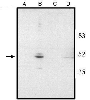 """Western blot analysis using anti-Chx10 (NT) antibody at 1 µg/ml on rat liver (A), retina tissue lysate (B), mouse liver (C) and retina (D) tissue lysate."""