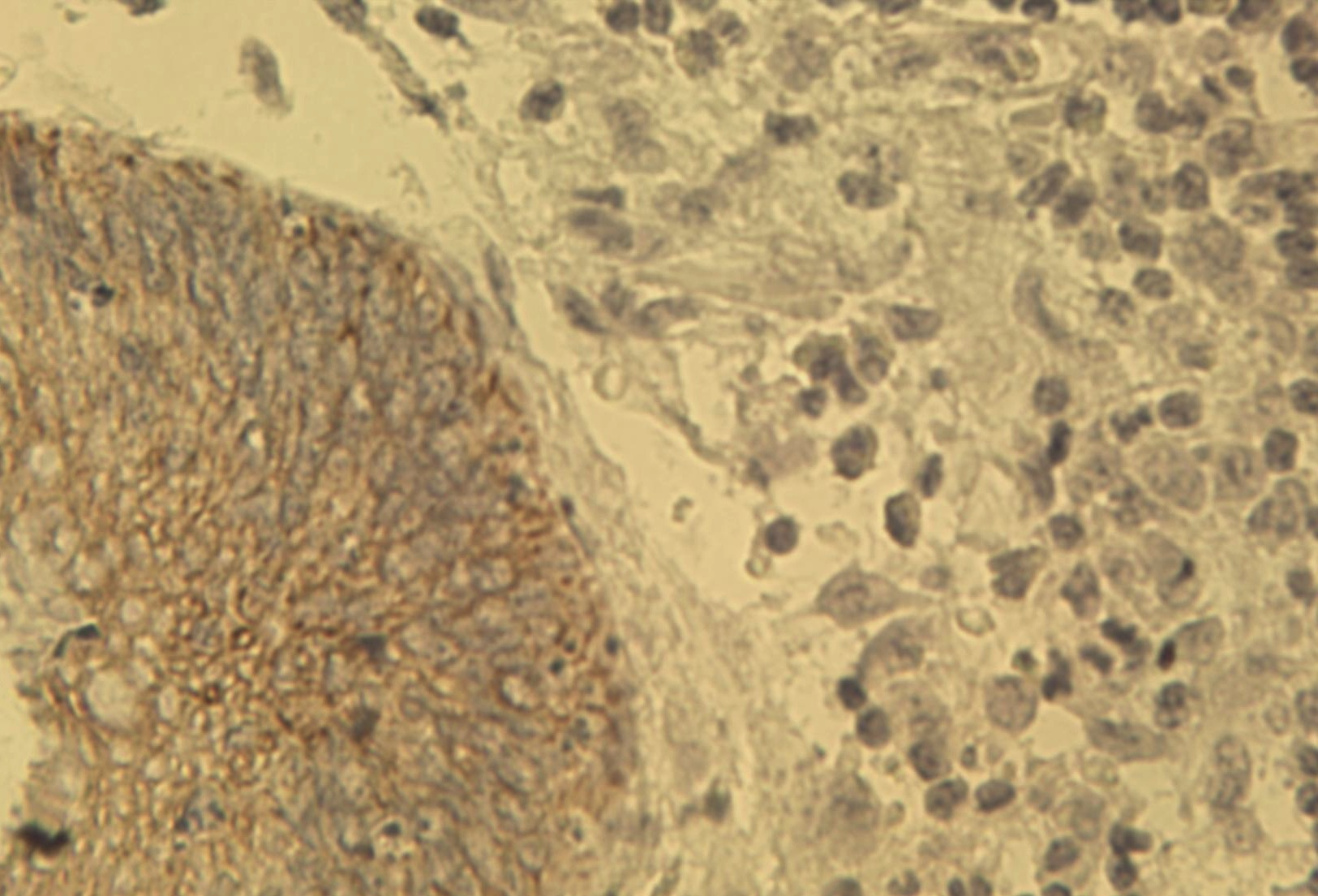 Figure 1. Immunohistochemical staining of human colon cancer tissue using pan Keratin antibody (Cat. No. X1260M) at 2.5 μg/ml.