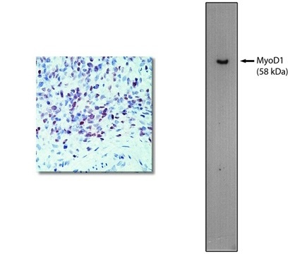 """""""Left: Immunohistochemical staining using MyoD1 antibody on formalin fixed, paraffin embedded human rhabdomyosarcoma.  Right: Western blot using 60 ng of purified MyoD1 protein with MyoD1 antibody at 2 µg/ml and detected using goat anti-mouse HRP (Cat. No. X1208P) and visualized with Pierce West-Femto substrate."""""""