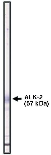 """ Western blot using ALK-2 antibody (cat. no. X1482P) on ALK-2 fusion protein."""