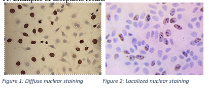 Figure 5. MCF-7 cells stained for BrdU incorparation using the X1545K.1 kit. Note the exclusive nuclear immunostaining with a diffuse staining pattern (Fig. 1) and a more localized pattern (Fig. 2).