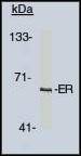 Western blot analysis using estrogen receptor antibody on human cells at 1-2 µg/ml.