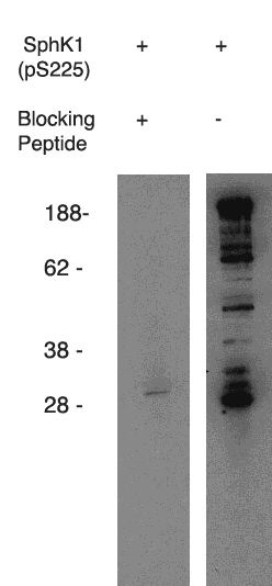 Western blot using anti-mouse SphK1 (pS225) (Cat. No. X1849P) on mouse B-cell lysate.  Antibody used at 1 µg/ml with phosphorylated blocking peptide (Cat. No. X1877B) (lane A) and without (laneB).