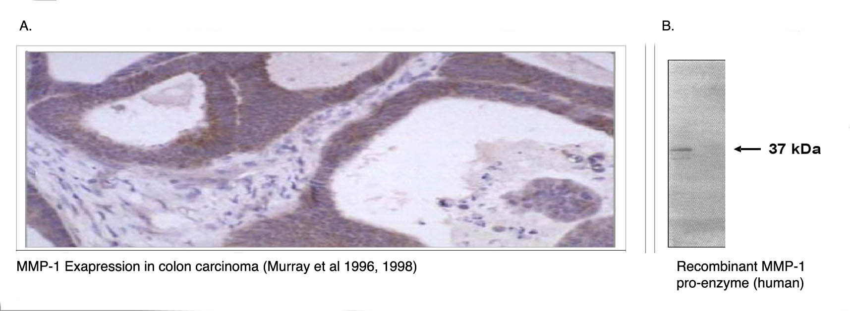 """"""" A. Immunohistochemical staining using MMP-1 antibody (Cat. No. X2053M) on colon carcinoma tissue section. B. Western blot using MMP-1 antibody on recombinant human MMP-1 proenzyme (400 ng/lane)."""""""