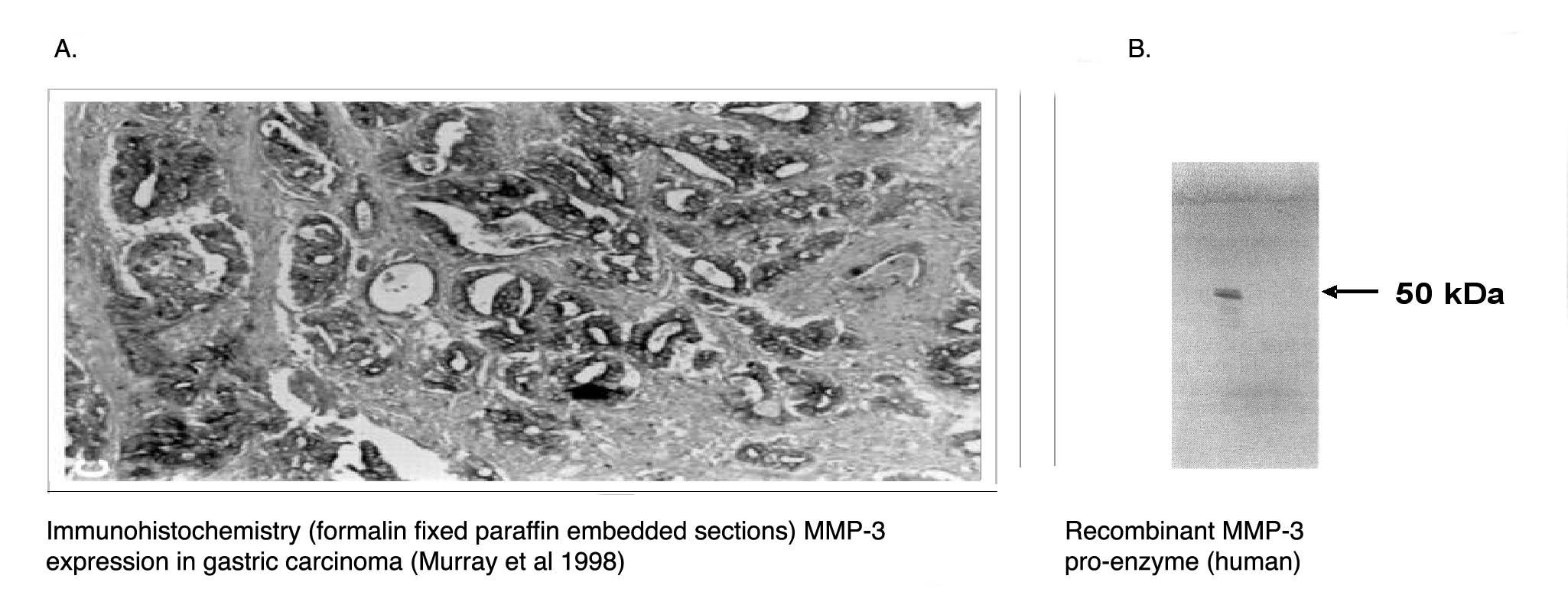 """ Left:  Immunohistochemical staining of human gastric carcinoma tissue using MMP-3 antibody (Cat. No. X2055M). Right:  Western blot of recombinant human MMP-3 proenzyme using MMP-3 antibody."""