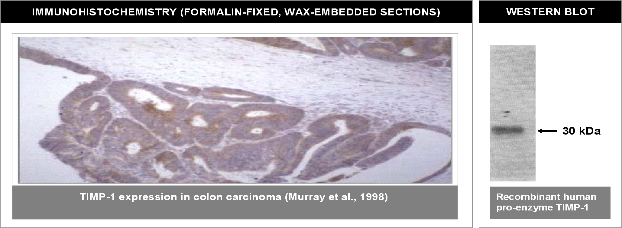 """ Left: Immunohistochemical staining of human colon carcinoma tissue using TIMP-1 antibody (Cat. No. X2058M). Right: Western blot using TIMP-1 antibody against recombinant human TIMP-1 proenzyme (400 ng/lane)."""