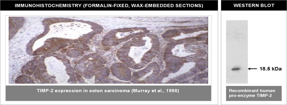 """Left: Immunohistochemical staining of human colon carcinoma tissue using TIMP-2 antibody (Cat. No. X2061M). Right: Western blot using TIMP-2 antibody on recombinant human TIMP-2 proenzyme (400 ng/lane)."""