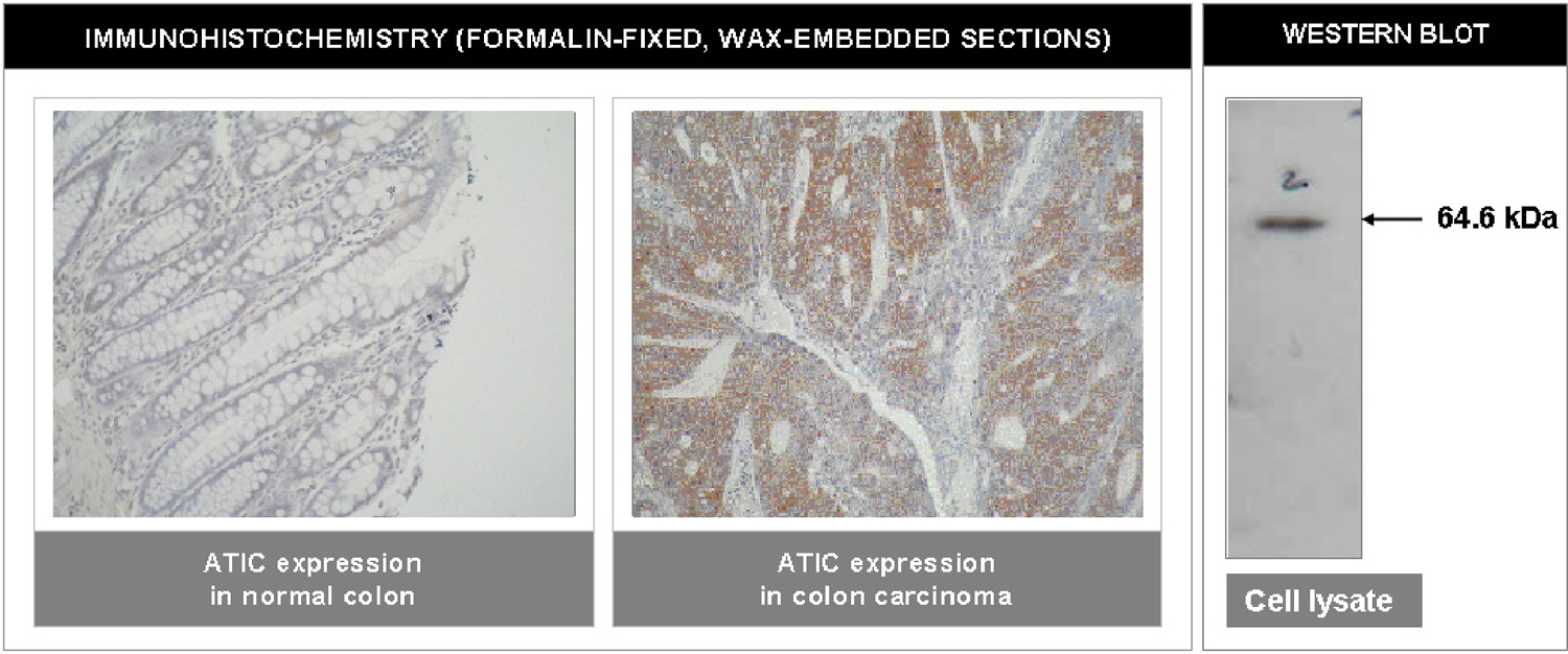 """""""Left and Center: Immunohistochemical staining of normal colon tissue and colon carcinoma tissue using ATIC antibody (Cat. No. X2062M). Right: Western blot using ATIC antibody on HT29 cell lysate."""""""
