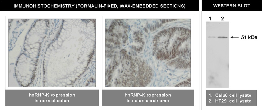 """Left and Center: Immunohistochemical staining of normal colon (left) and colon carninoma (center) using hnRNP-K antibody (Cat. No. X2068M). Right: Western blot using hnRNP-K antibody on Calu6 (1) and HT29 (2) cell lysates."""