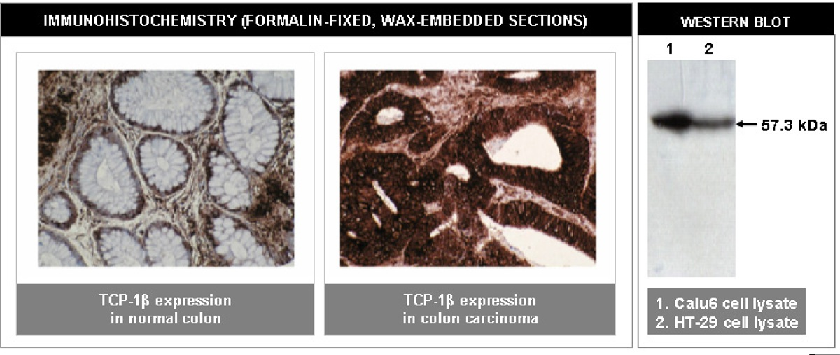 """""""Left and Center: Immunohistochemical staining of normal (left) and cancerous (center) colon tissue using TCP-1β antibody (Cat. No. X2069M). Right: Western blot analysis using TCP-1β antibody on Calu6 (1) and HT-29 (2) cell lysates."""""""