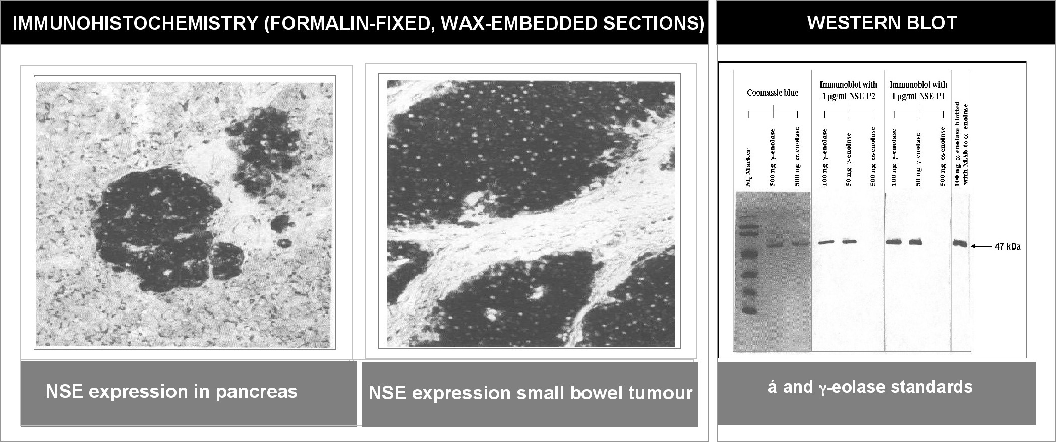 """Left and Center: Immunohistochemical staining of normal pancreas tissue (left) and small bowel tumor tissue (center) using NSE antibody (X2070M and X2071M). Right: Western blot analysis using NSE antibodies (X2070M and X2071M) on α and γ enolase standards."""