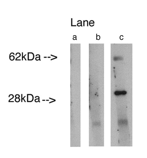 """ Western blot analysis using LAG1 longevity assurance homolog 4 (Cat.# X2298P) at 0.75ug/ml on human lung lysate14 ug/lane.  Lane A] conjugate alone, Lane B] antibody plus 27 ug blocking peptide (Cat. # X2299B ), Lane C] antibody alone. Visualized using Pierce West Femto substrate system.  Anti Rabbit secondary used at 1:3.5K dilution (Cat. # X1207M).  Exposure for 5 minutes"""