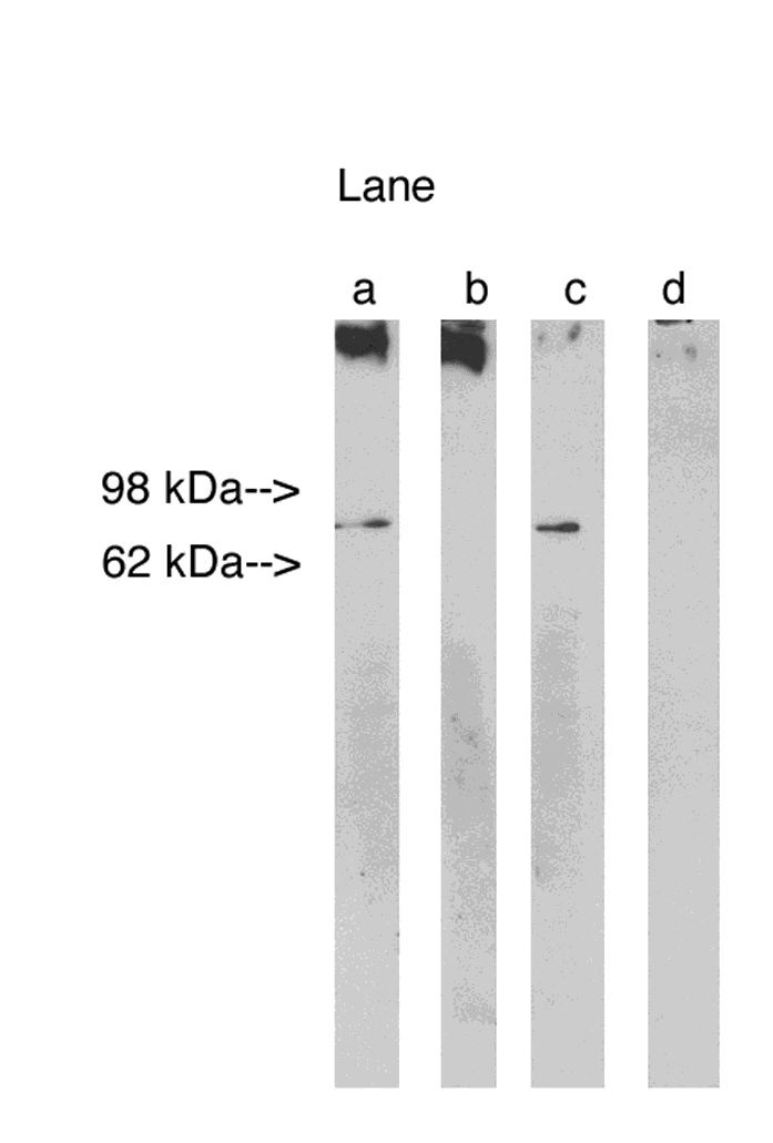 Western blot analysis using Lass 1 (Cat. # X2311P) at 5ug/ml on Human Brain lysate 14 ug/lane (Cat. # X1633C).  Lane A] antibody alone, Lane B] antibody with 45ug peptide, Lane C] antibody with nonspecific peptide, D]conjugate alone. Visualized using Pierce West Femto substrate system.  Anti Rabbit secondary used at 1:3.5K dilution (Cat. # X1207M). Exposure for 5 minutes