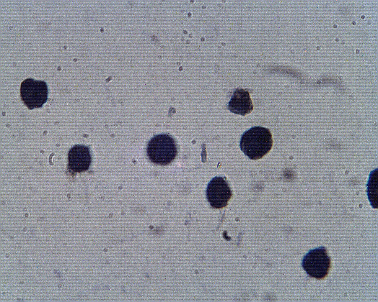 Staining of Hep G2 cells with PCSK9 antibody (Cat. No. X2740P) at 2 µg/ml.